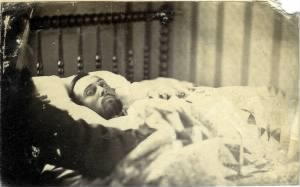 Private Lewis Simpson Probably on his Death Bed-Courtesy of Frazier Farmstead Museum